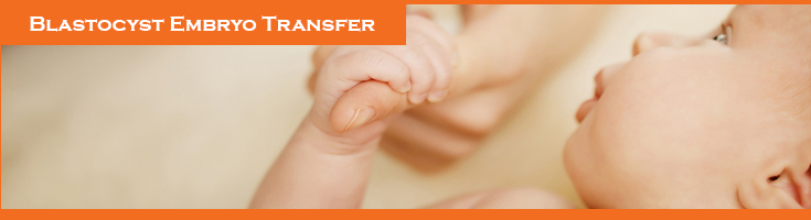 Blastocyst-Embryo-Transfer