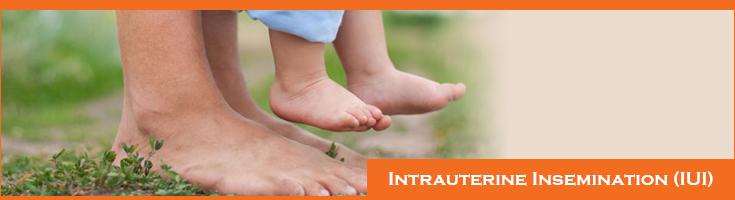 Intrauterine Insemination-(IUI)