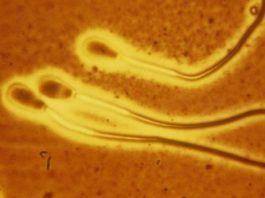 Scientist Revealed New Finding For Swimming Of Bunch Of Sperms In Gloopy Liquid
