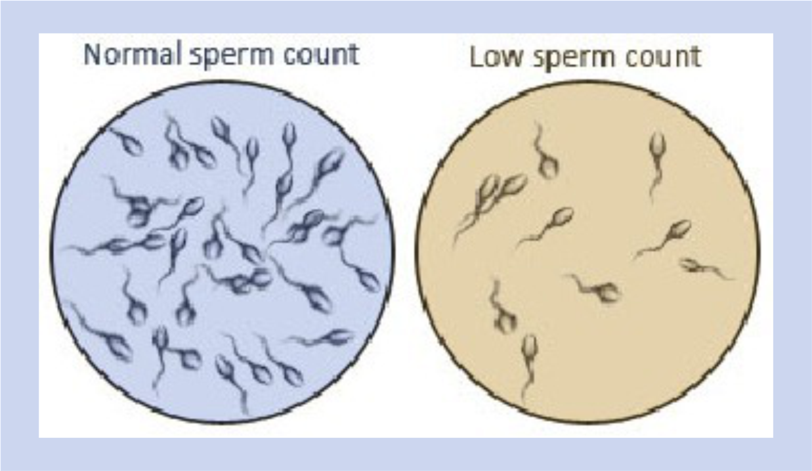 Decrease in sperm