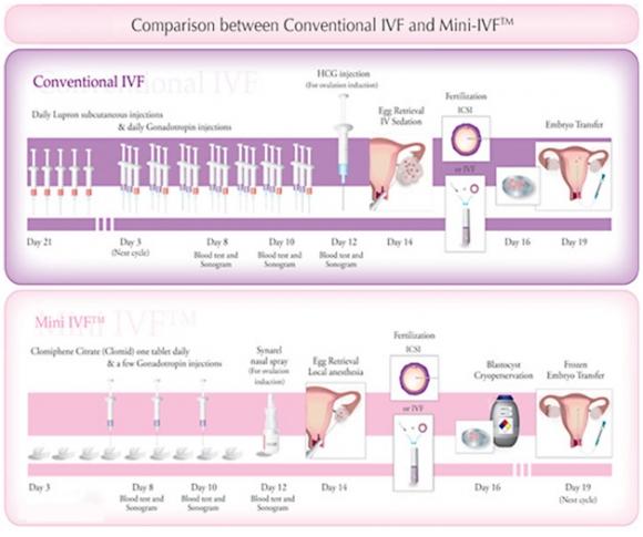 Mini IVF