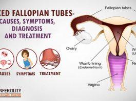 Blocked Fallopian Tubes- Causes, Symptoms, Diagnosis And Treatment