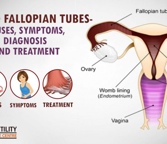 Blocked Fallopian Tubes- Causes, Symptoms, Diagnosis And Treatment