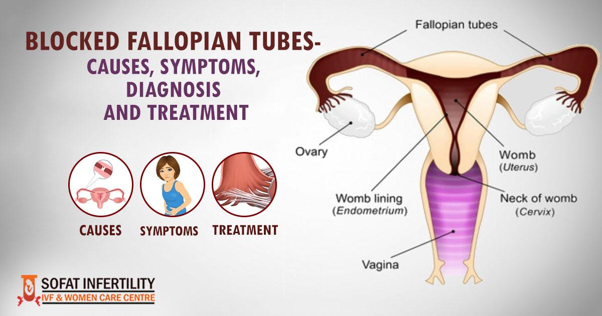 Blocked Fallopian Tubes- Causes, Symptoms, Diagnosis And
