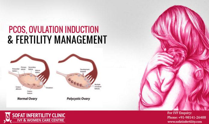 PCOS, Ovulation Induction & Fertility Management