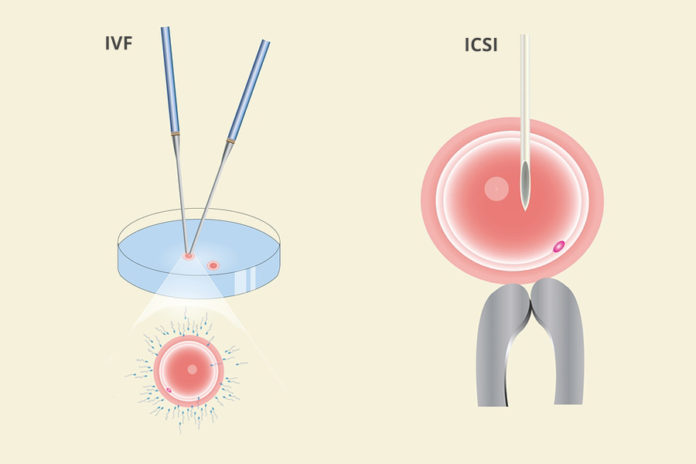 Is ICSI better than IVF (ICSI VS IVF)