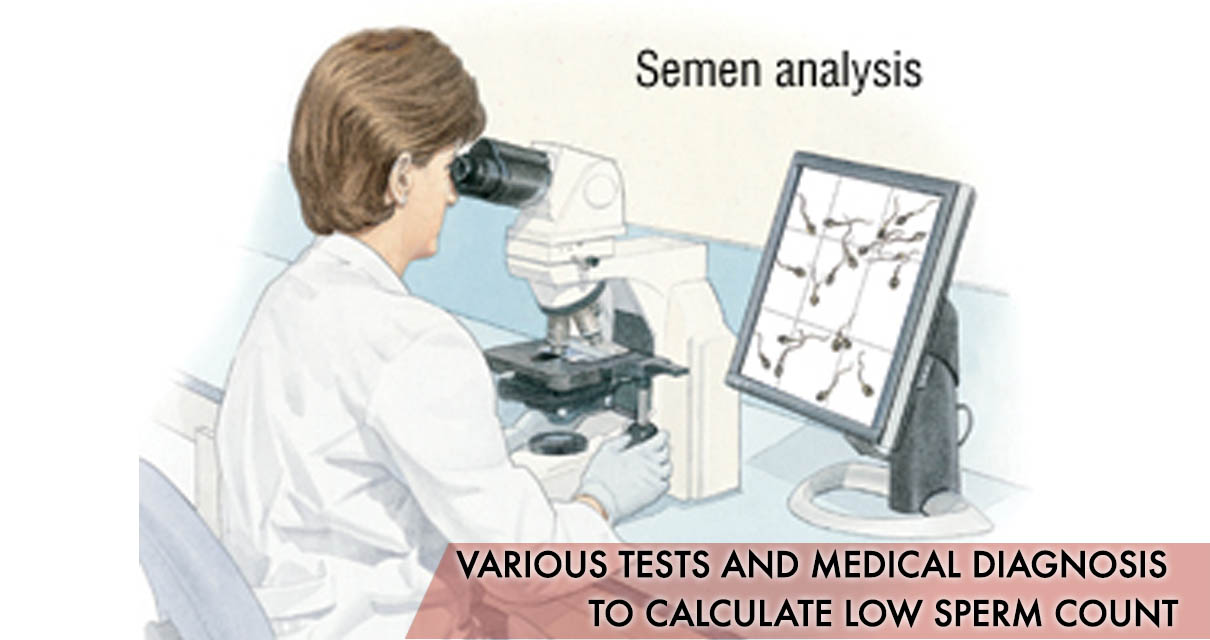 Various tests and medical diagnosis to calculate low sperm count: