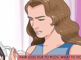 Hair Loss Due to PCOS, What to Do about It?