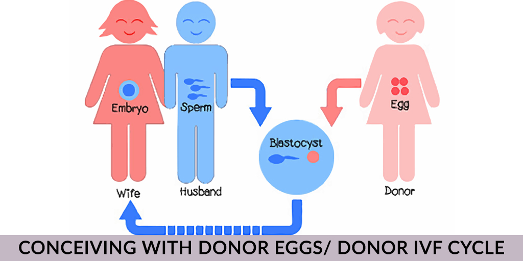 Ivf with donor eggs sperm