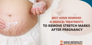 How to Remove Stretch Marks After Pregnancy | Home Remedies and Medical Treatments