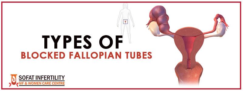 Types of Blocked Fallopian Tubes