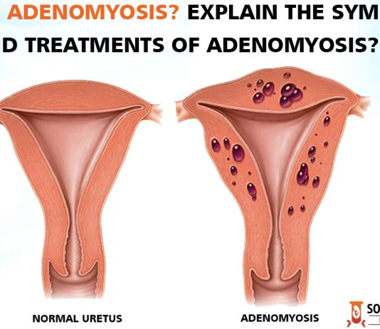 What is Adenomyosis? Explain the symptoms and treatments of Adenomyosis?