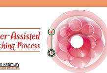 Laser-Assisted Hatching Process