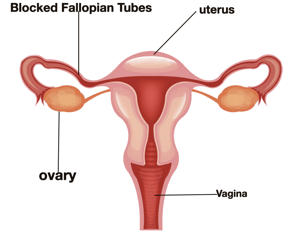 Blocked Fallopian Tubes Treatment In Ludhiana Punjab India