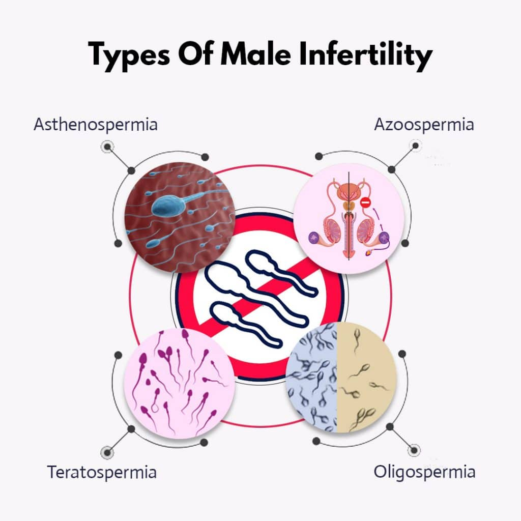 What is male infertility?